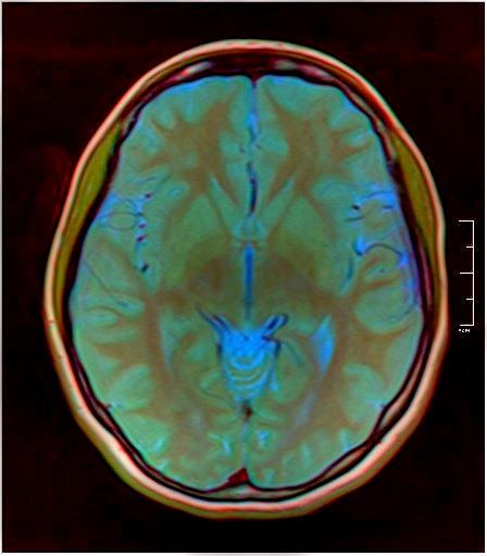 Color Brain MRI 0284 11.jpg