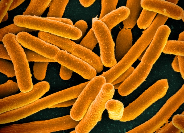 the biological description of ecoli and how it affects us Just before his death, doctors drained blood from the first president of the united states to try to cure him of illness.