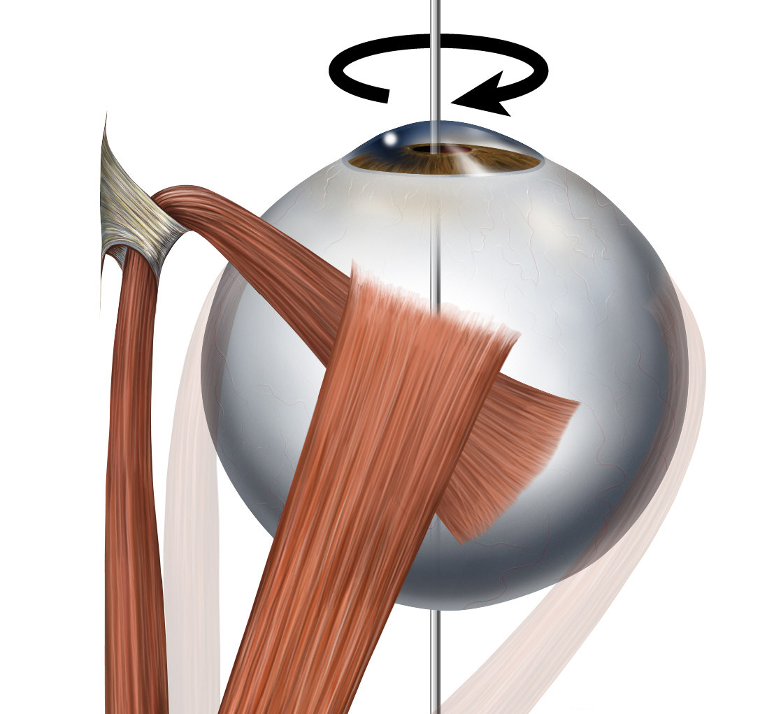 Músculo oblicuo superior - Wikipedia, la enciclopedia libre