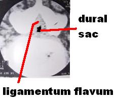 CT scan of spinal stenosis and thickened ligamentum flavum, causing neurogenic claudication