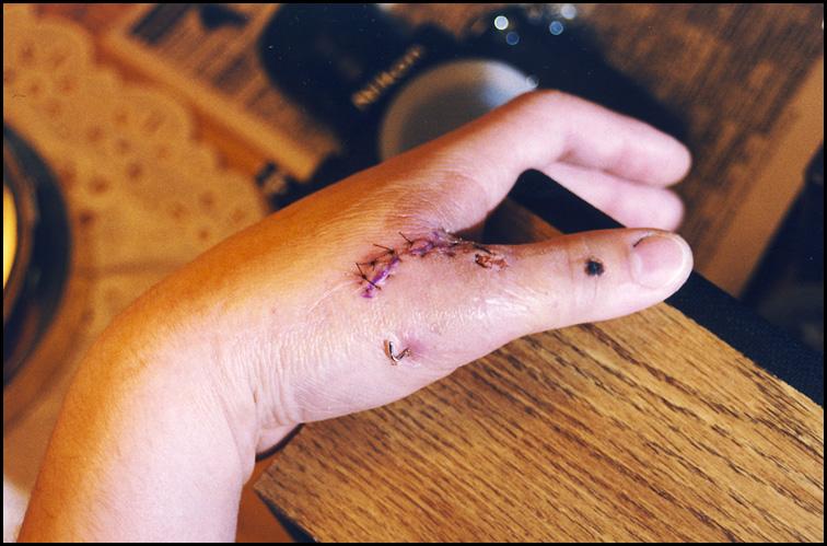 File:Surgical Repair of Gamekeeper's Thumb Injury.jpg