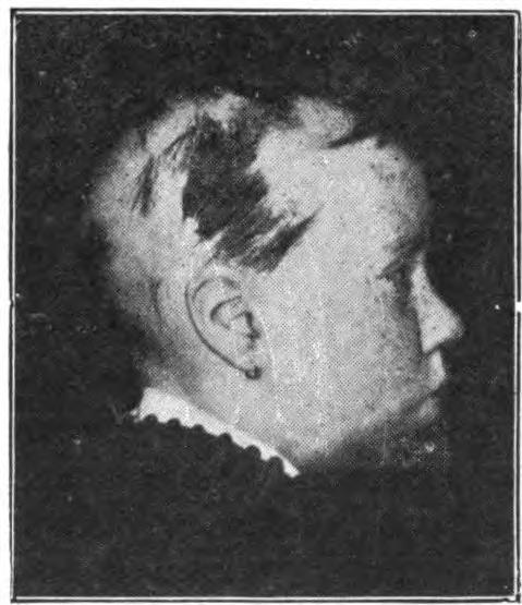 alopecia areata emedicine
