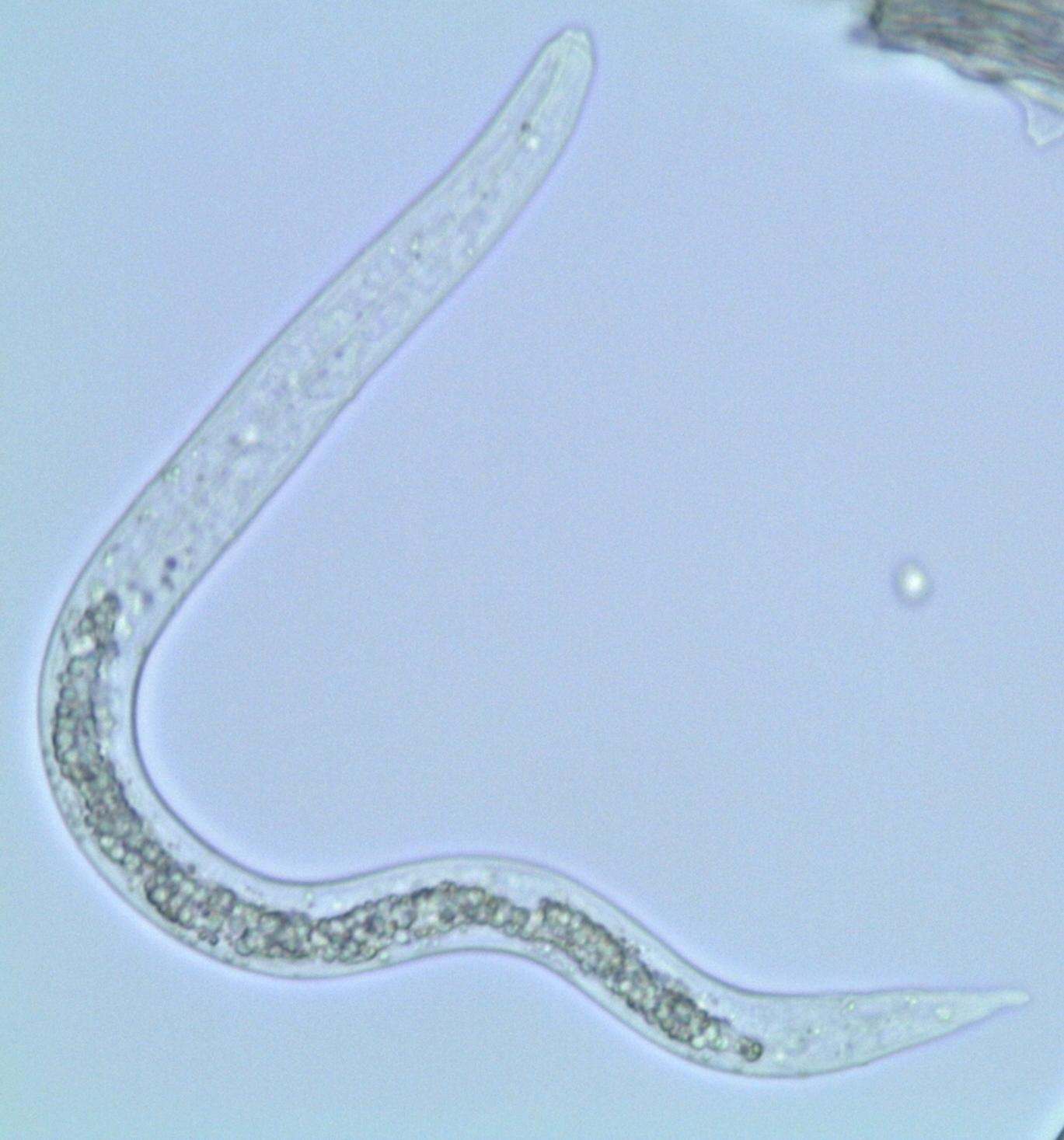 File:Ascaris Larva (hatched On Slide) (18280430596).jpg
