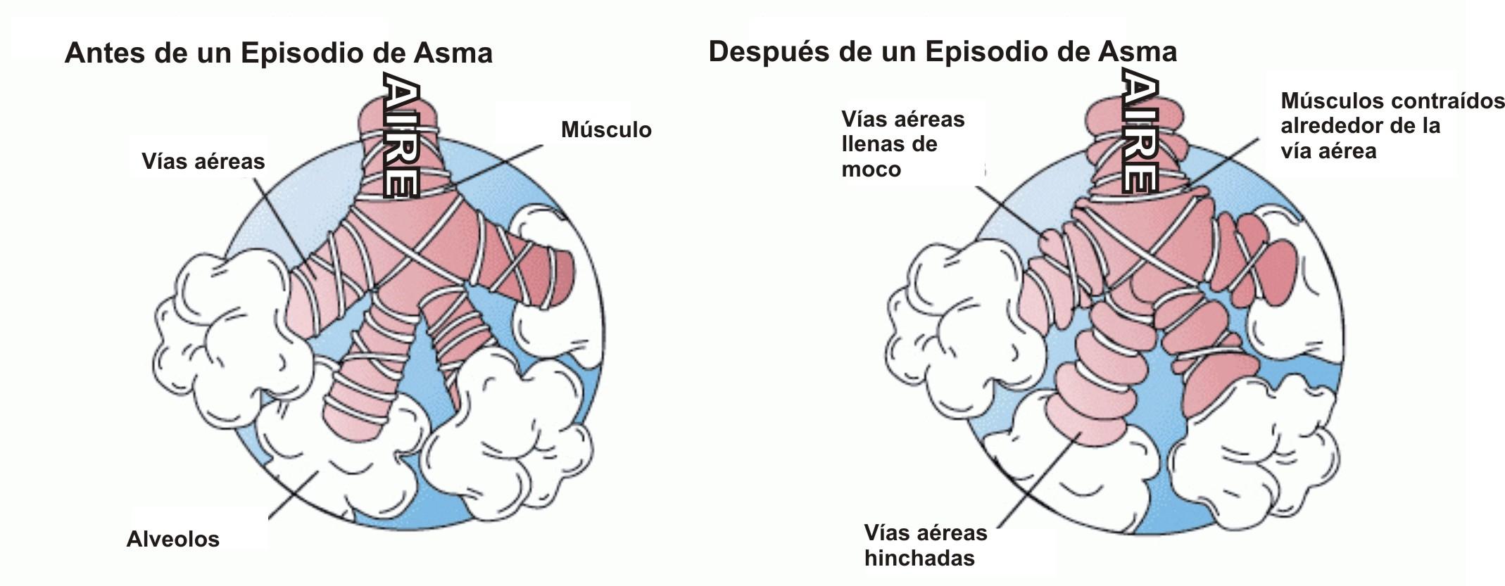 Asma - Wikipedia