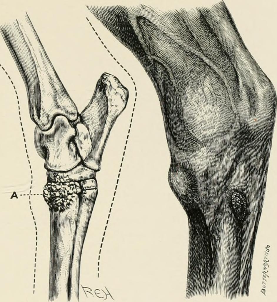 Bone spavin - Wikipedia