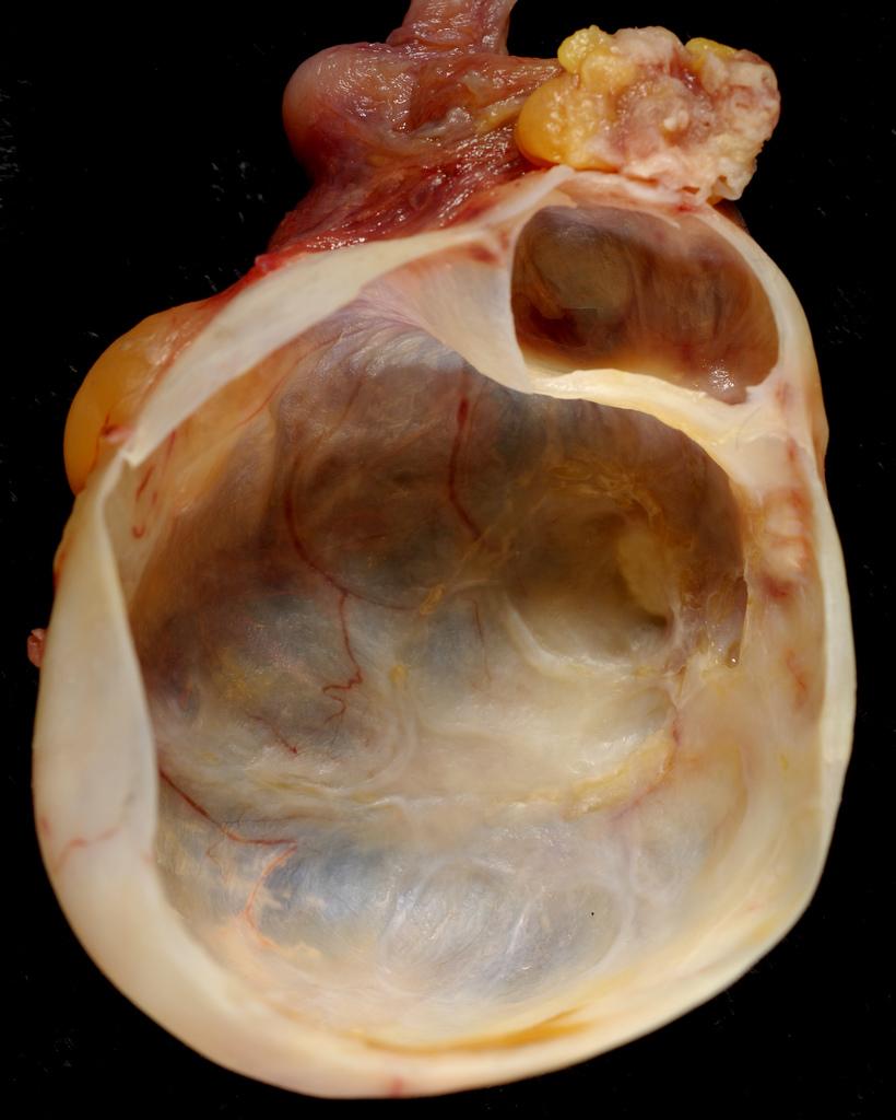 Image Result For Cancer Symptoms Ovarian
