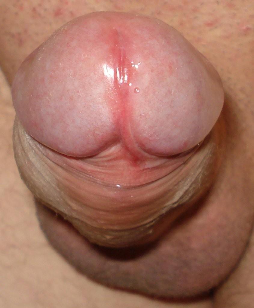 golovka-chlena-zalupa-erotika-video-smotret-onlayn-gruppovoe-porno-s-straponom