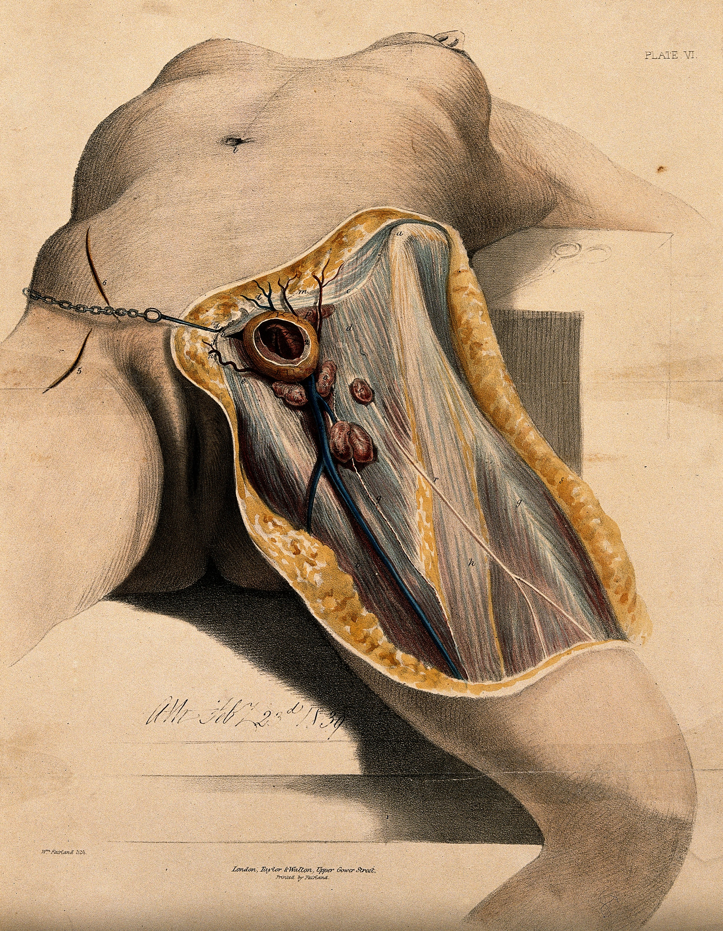 File:A dissection of the groin and thigh. Coloured lithograph by ...