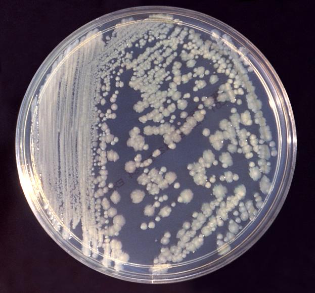 Klebsiella Pneumoniae Nutrient Agar Enterobacter clo...