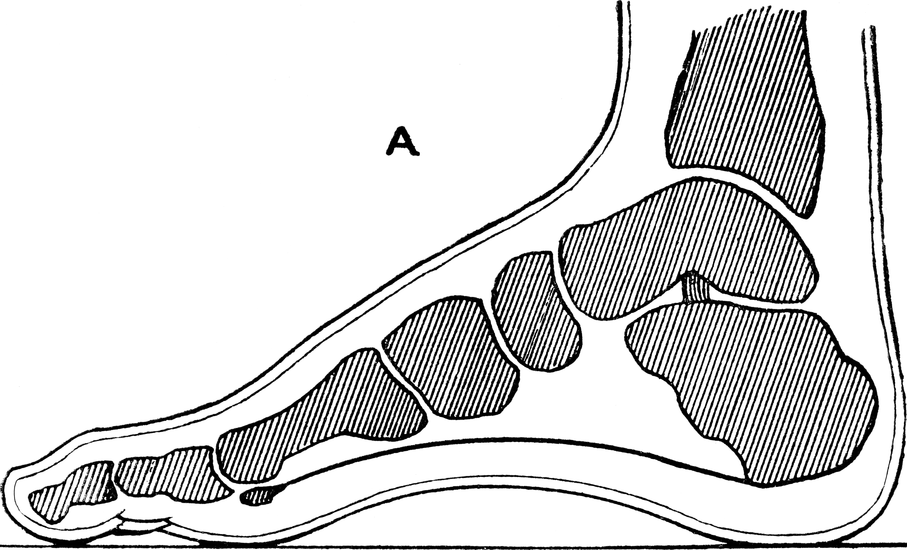 Plantar faciitis isn't the only cause of heel pain.