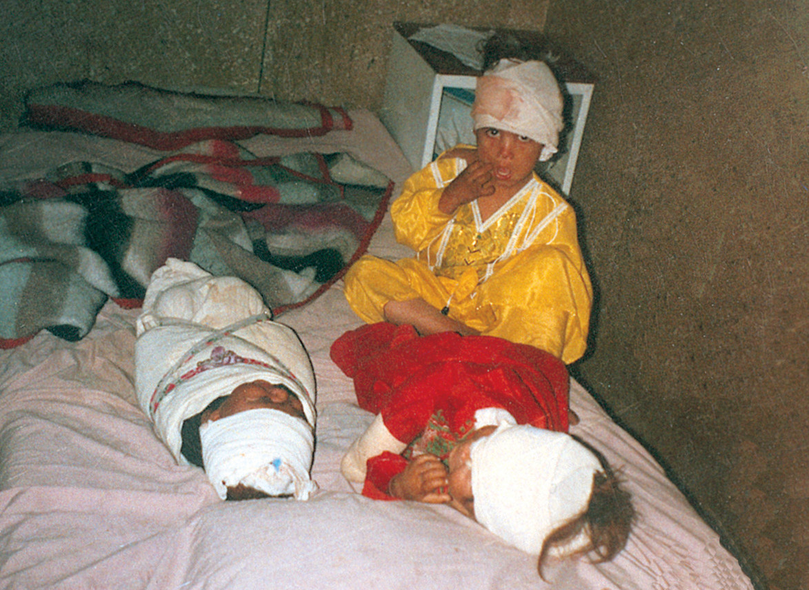 http://upload.wikimedia.org/wikipedia/commons/7/79/Three_children_wounded_by_a_US_bomb_in_Nangrahar_province_of_Afghanistan.jpg