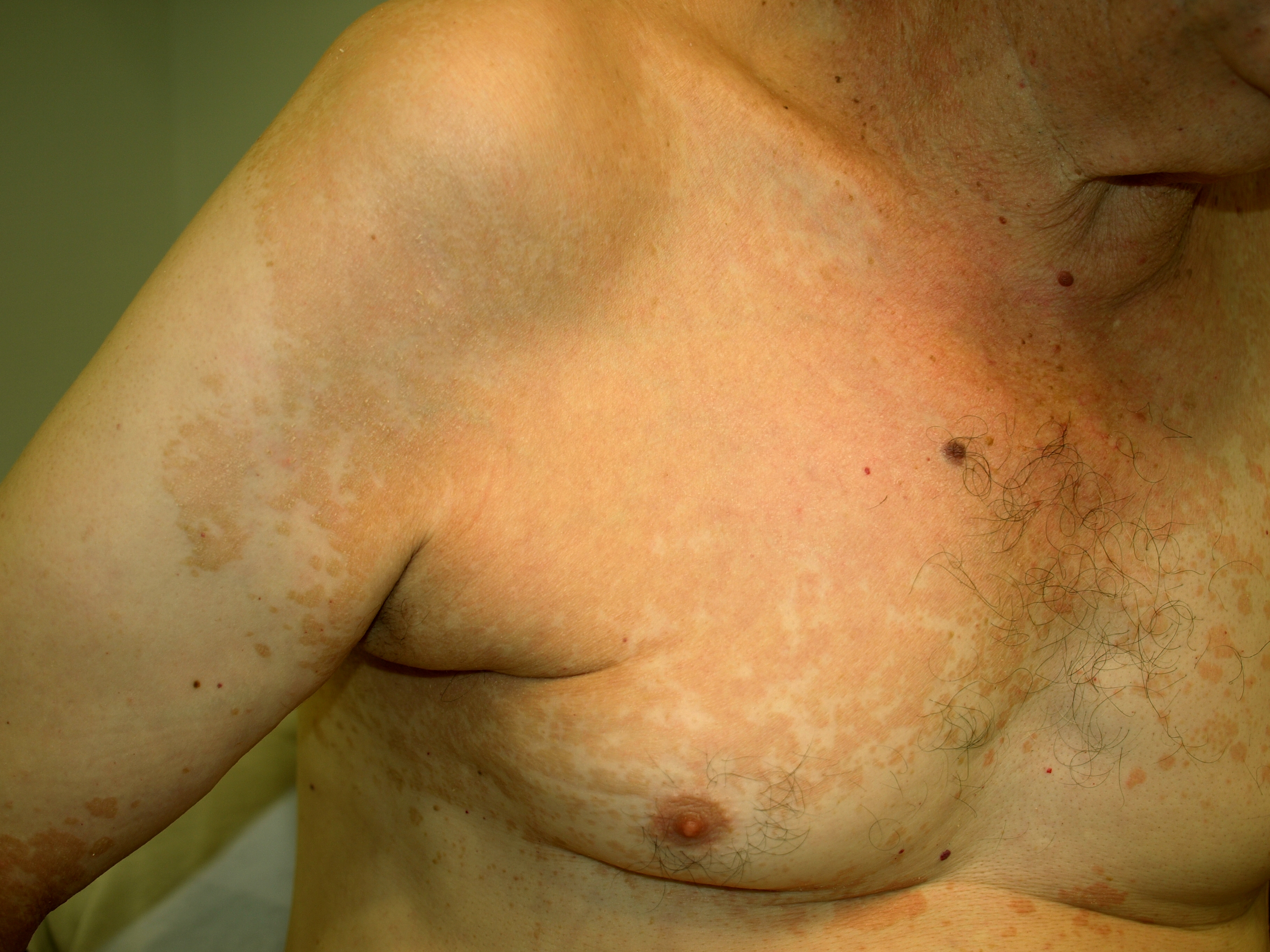 http://upload.wikimedia.org/wikipedia/commons/7/79/Tinea.jpg