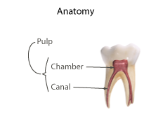 Pulpotomy