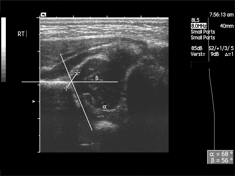 File:Ultrasound - normal newborn right hip (Graf type Ib).jpg