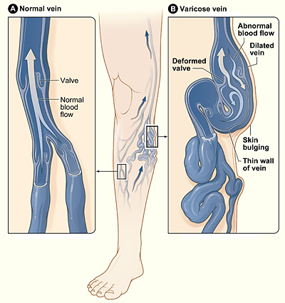 Varicose veins - Wikipedia, the free encyclopedia