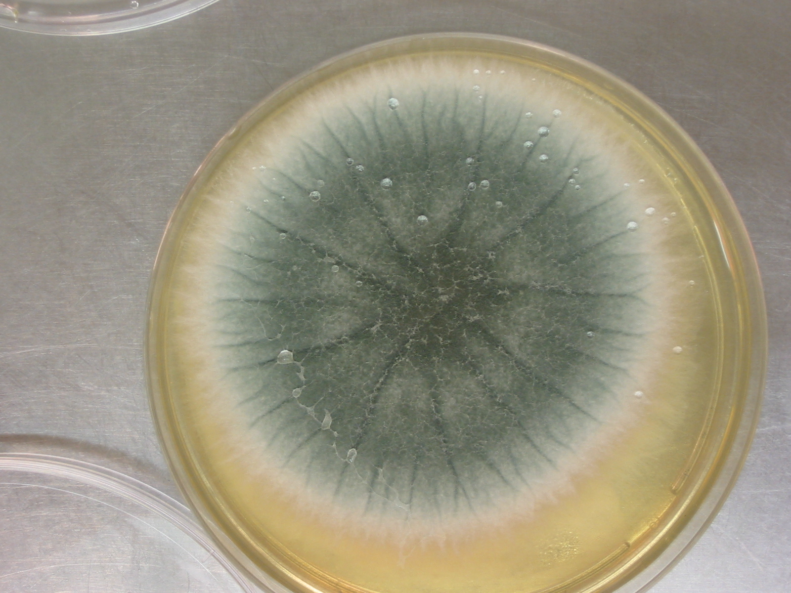 https://upload.wikimedia.org/wikipedia/commons/7/7a/070522-aspergillus_009.jpg