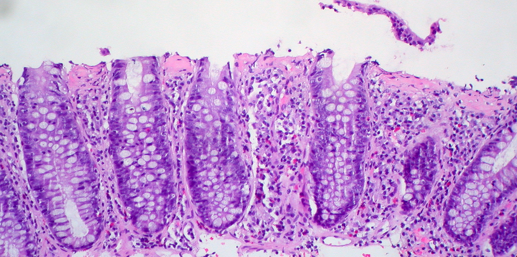 ulcerative colitis steroid treatment side effects