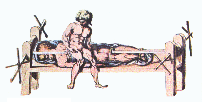 Hippocratic Bench, as illustrated in one of Galen's works.