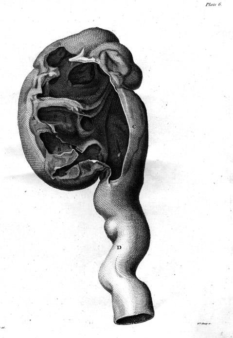 Nephritis Wikipedia