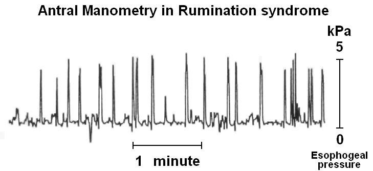 Rumination syndrome - Wikipedia