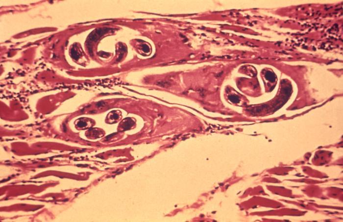 Trichinella spiralis en tejido muscular