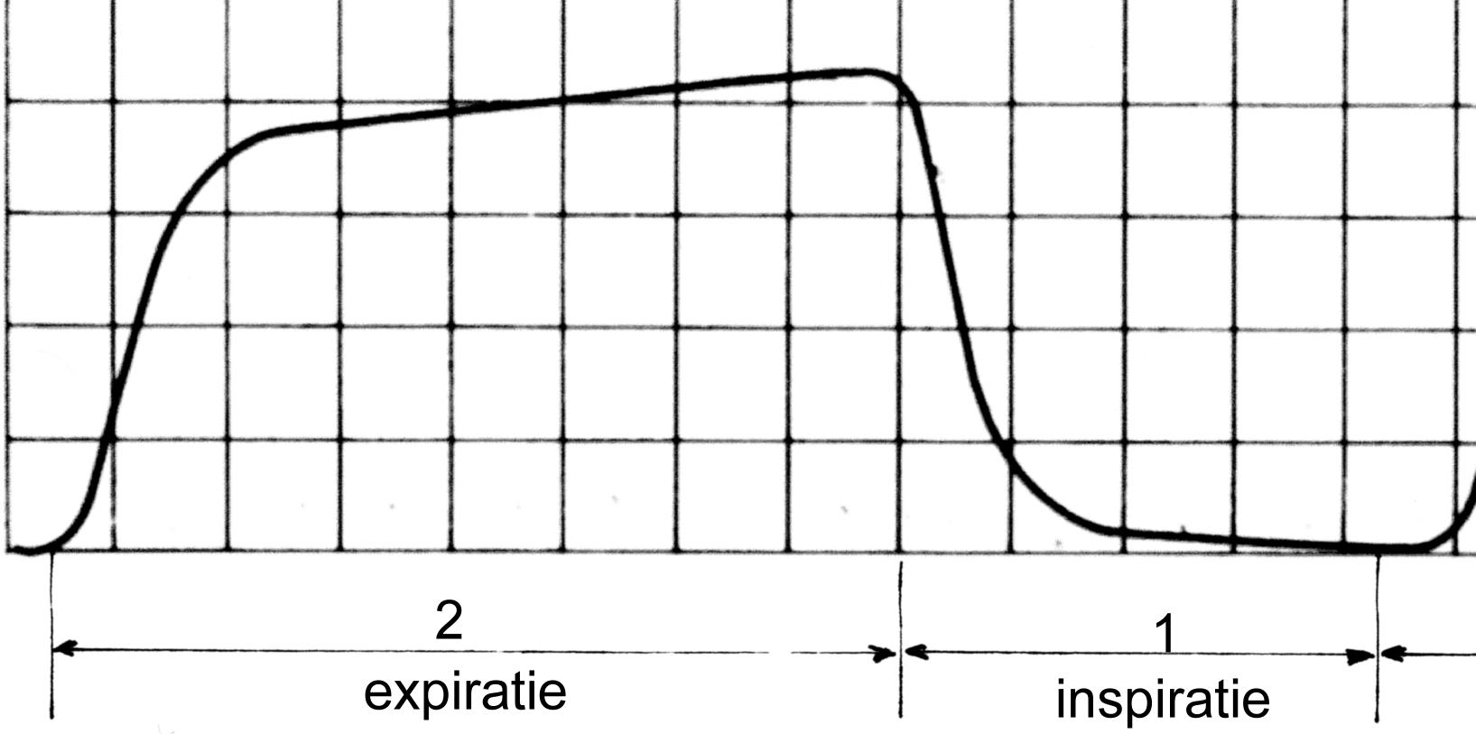 Capnography - Wikipedia