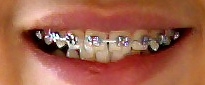 Dental Braces.jpg