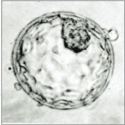 human blastocyst embryo