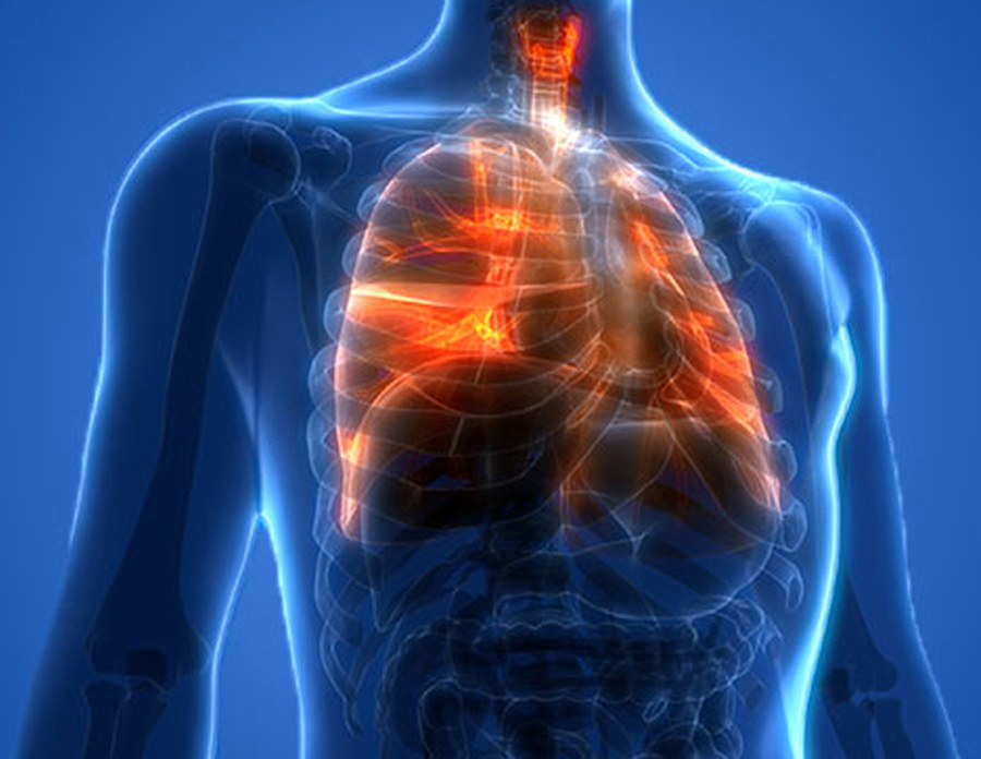 Lung_Injury_Associated_with_E-cigarette_or_Vaping_Products