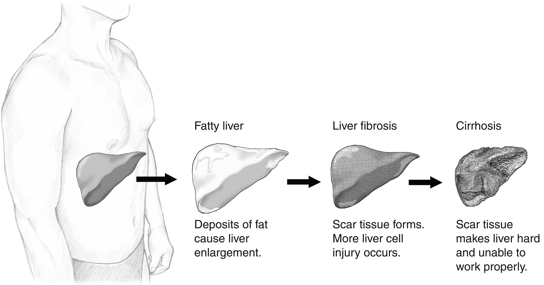 enfermedad hepática alcohólica emedicina diabetes