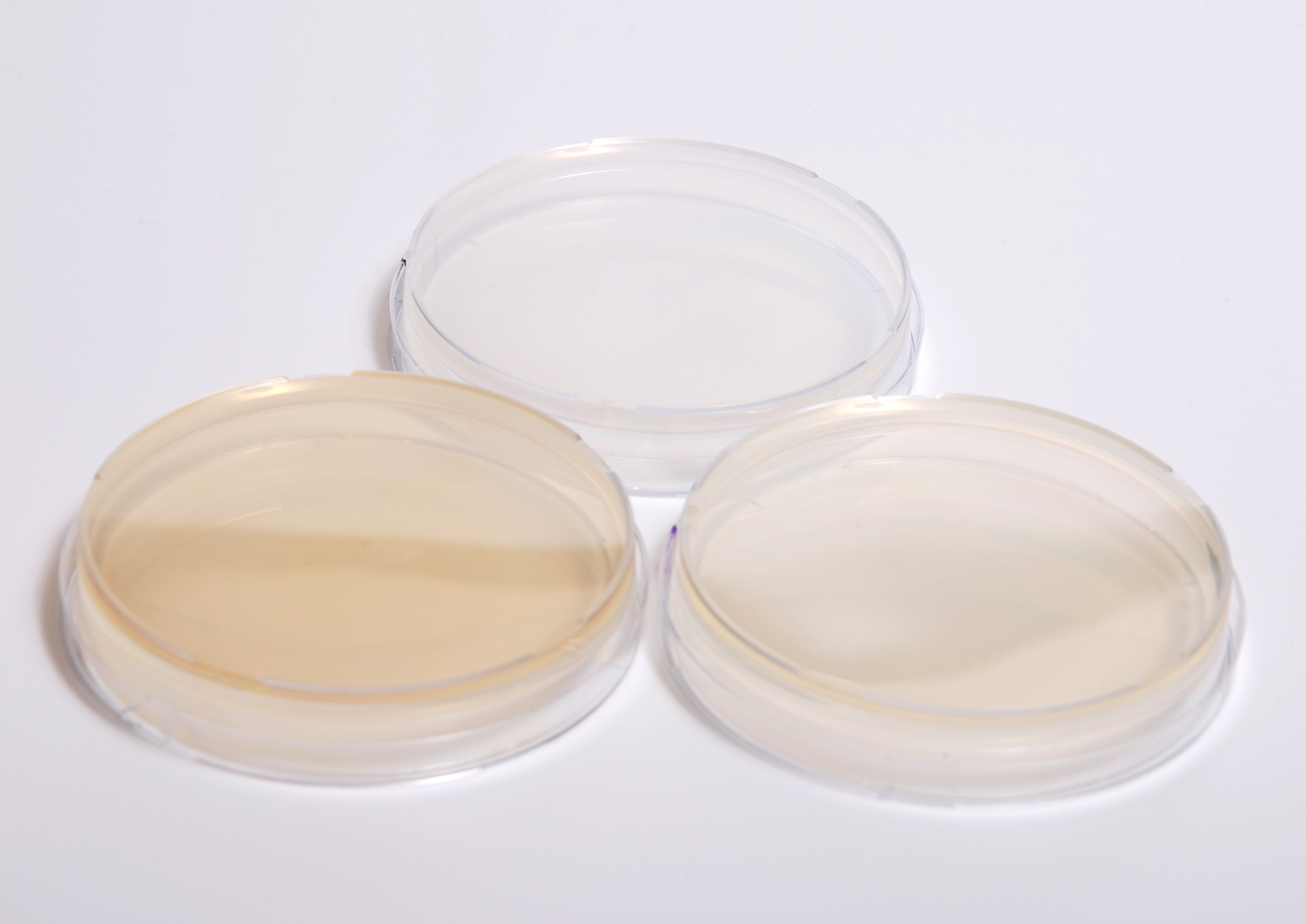 File:Agar plates different types.jpg - Wikimedia Commons
