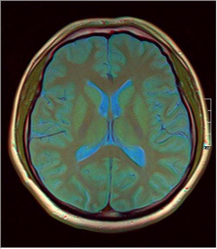 Brain MRI 0077 09.jpg