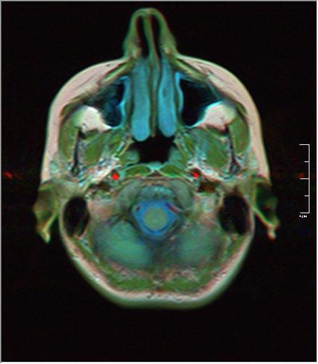 Brain MRI 0146 19.jpg