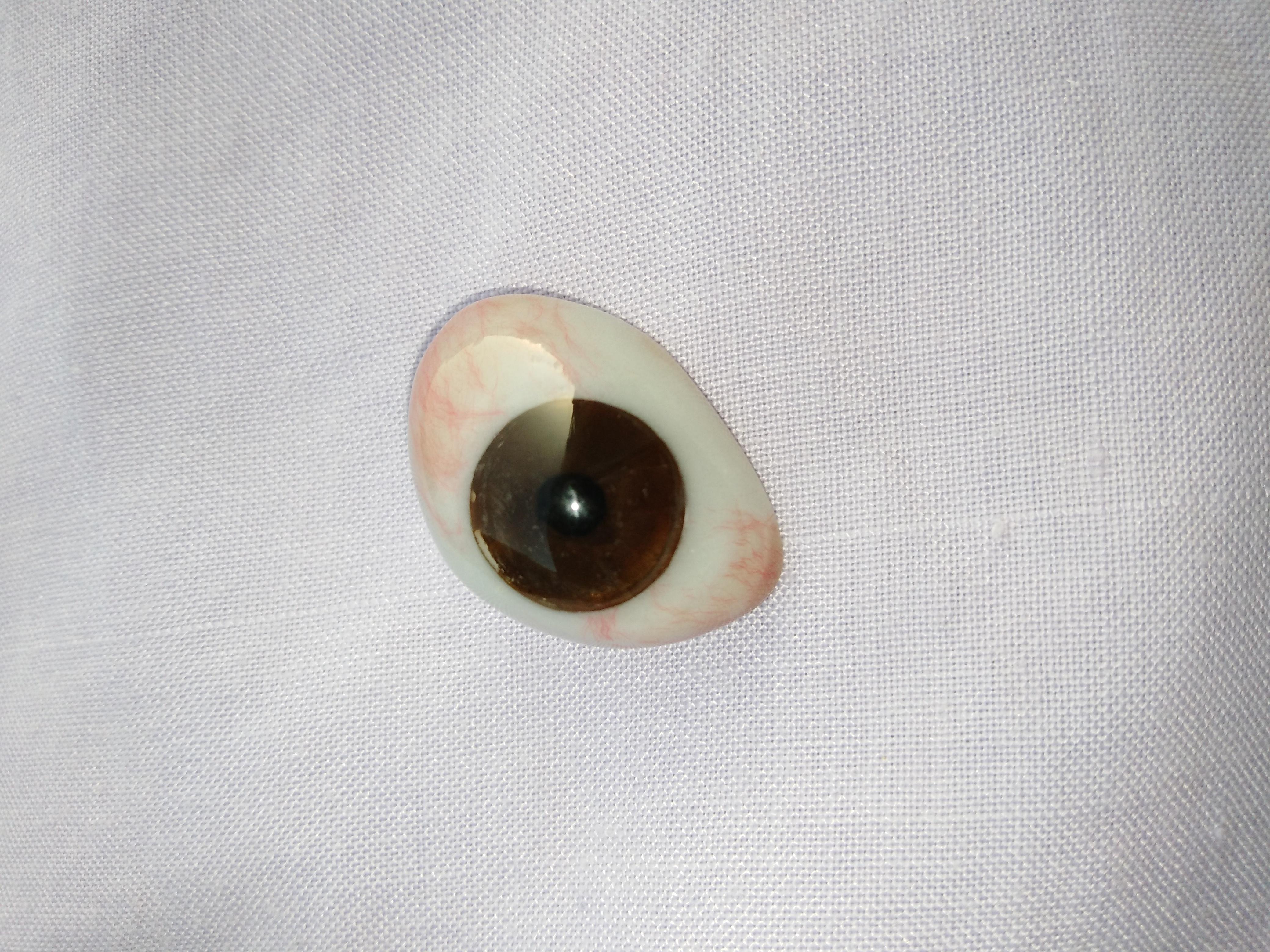 49be9d962c9 Ocular prosthesis - Wikipedia