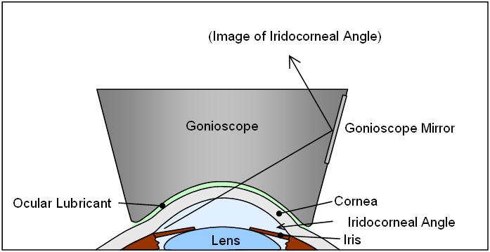 Gonioscopy Wikipedia