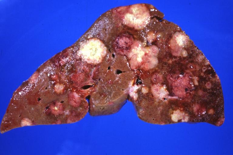 Natural Sarcoma Cancer Cure