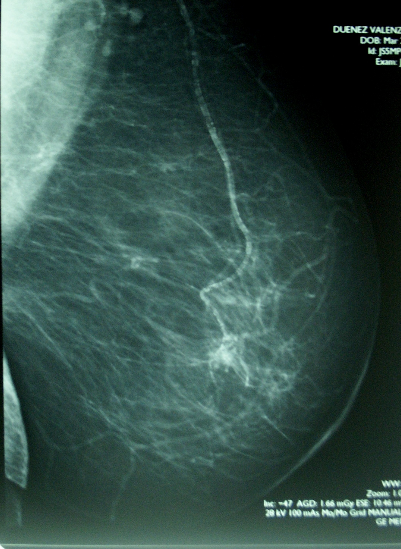 Mamografía BIRADs IV.jpg