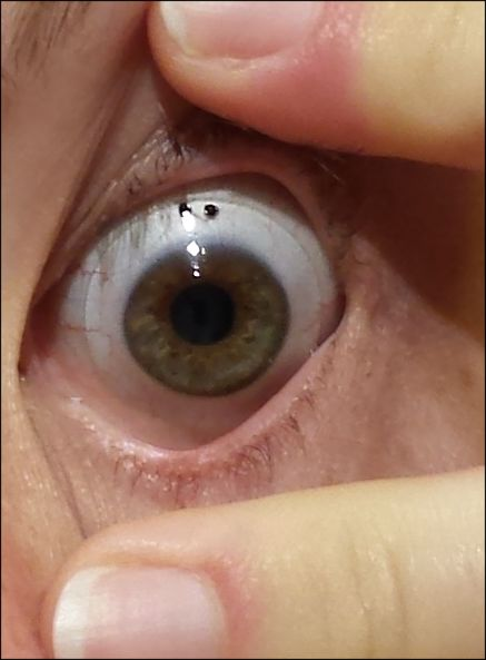 File Scleral Lens Worn On An Eye Jpg Wikimedia Commons