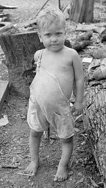 Child of a sharecropper with malnutrition and rickets, 1935