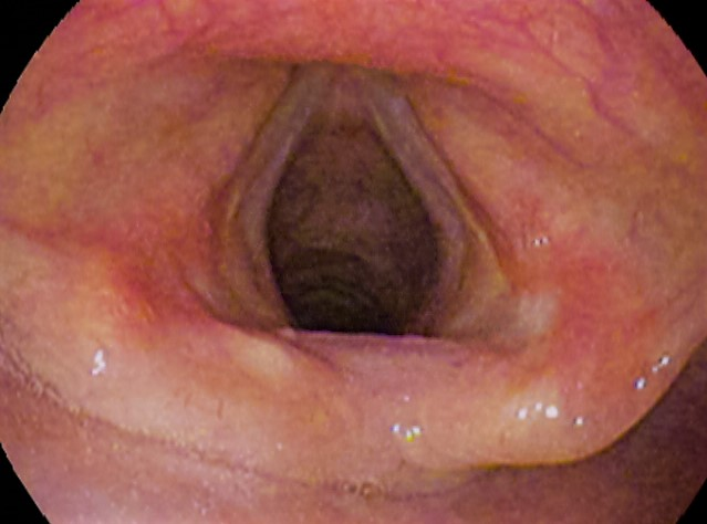 Vocal folds-201611.jpg
