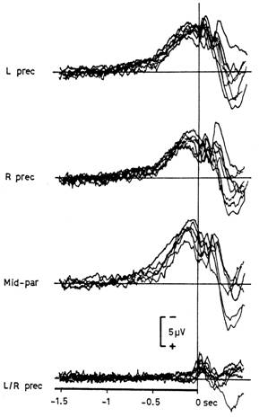 Typical recording of a Bereitschaftspotential