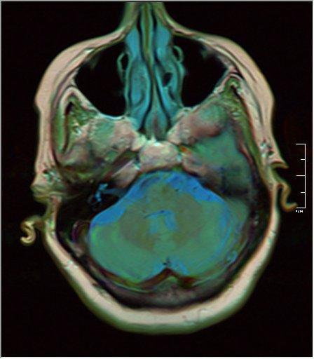 Brain MRI 0038 15 t1 pd t2.jpg