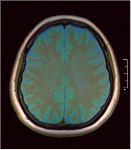 Brain MRI 0145 06.jpg