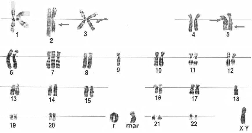 Bildresultat för chromosome wikipedia