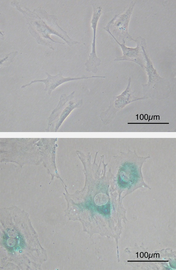 Cellular senescence(upper) Primary mouse embryonic fibroblast cells (MEFs) before senescence. Spindle-shaped. (lower) MEFs became senescent after passages. Cells grow larger, flatten shape and expressed senescence-associated -galactosidase (SABG, blue areas), a marker of cellular senescence.
