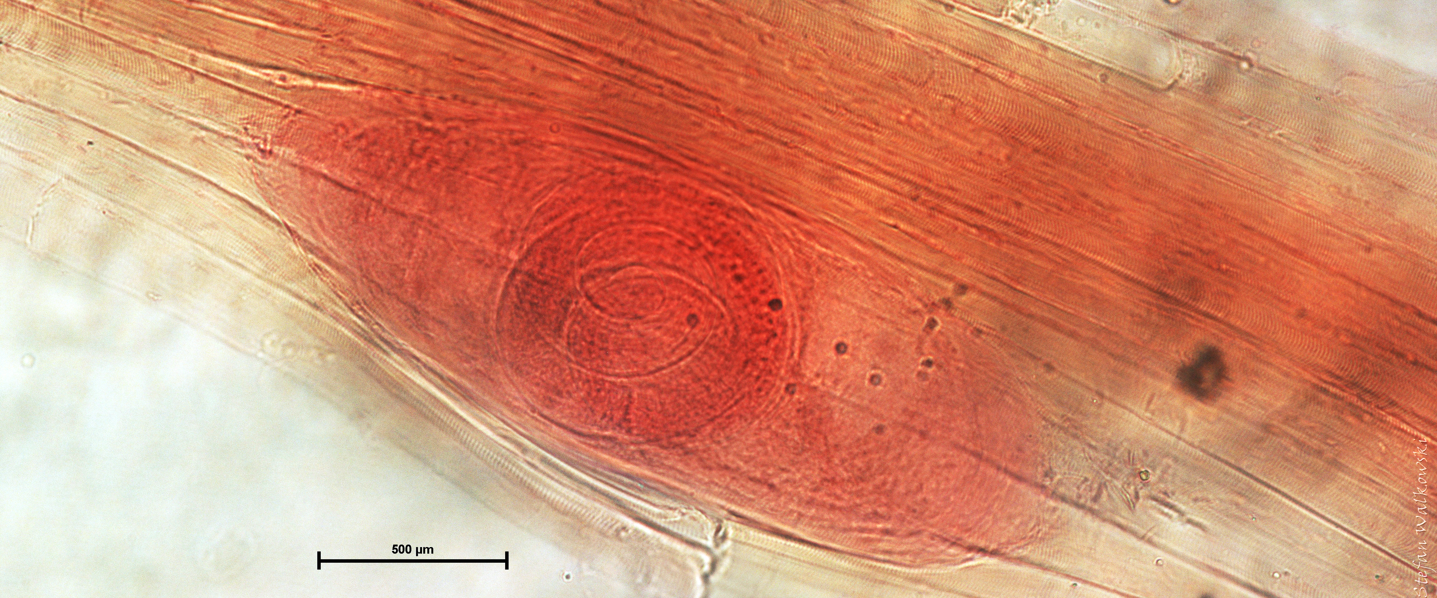 trichianella spiralis Title: trichinella - a nematode parasite author: tsmith keywords: trichinella, trichinella spiralis, trichinosis, parasites, food.