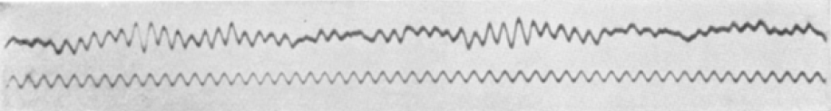 The first human EEG recording, 1924
