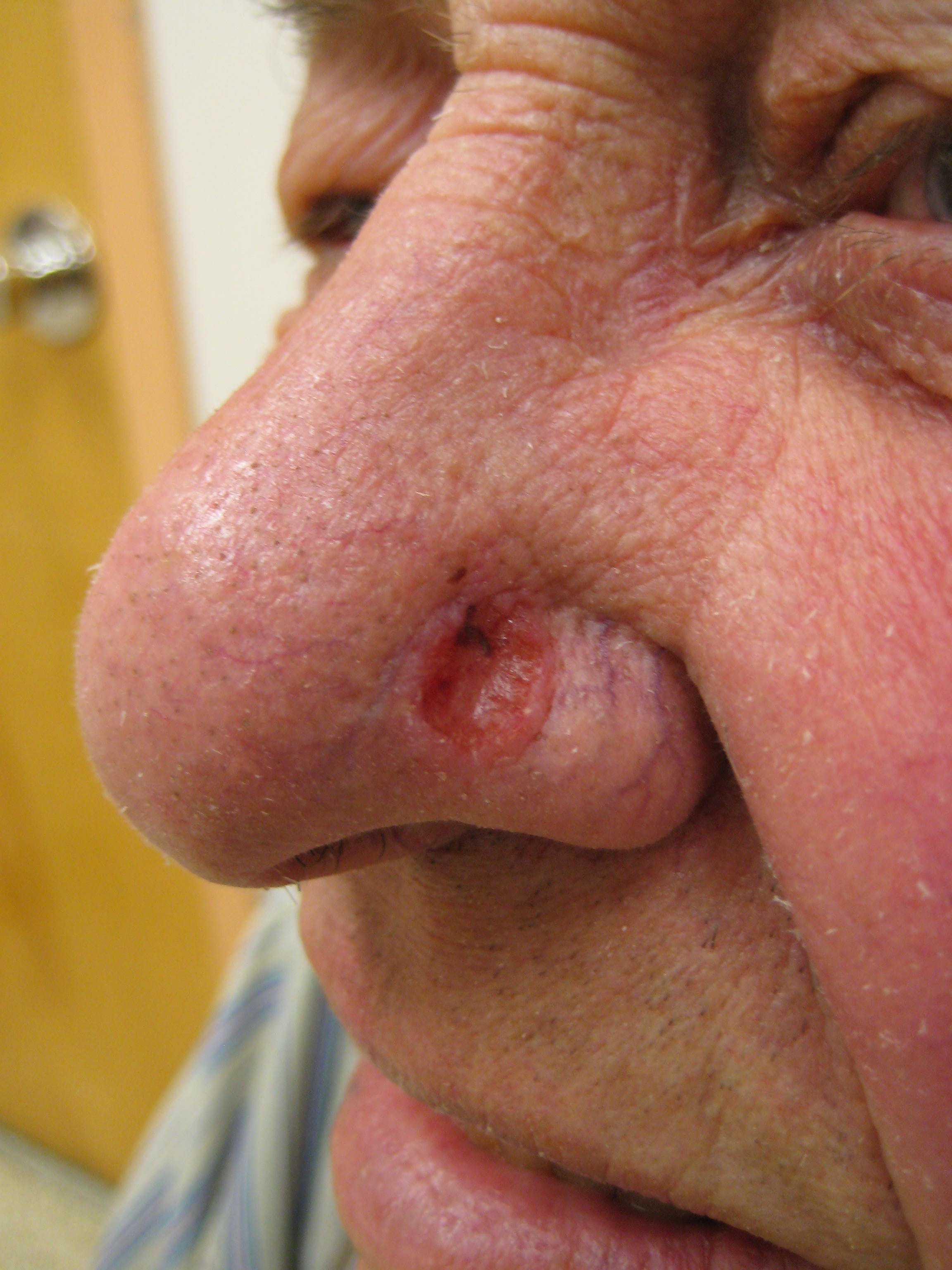 Basal-cell carcinoma - Wikipedia