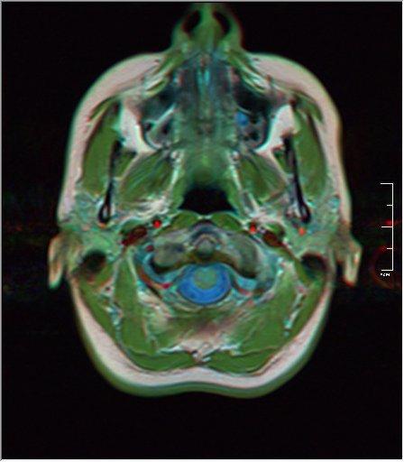 Brain MRI 0053 19.jpg