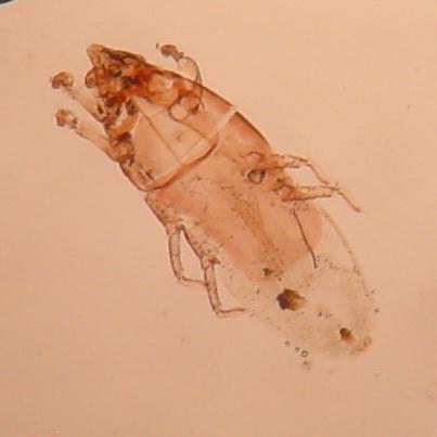 Chirodiscoides caviae pod světelným mikroskopem